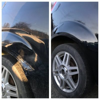 Arch dent removal